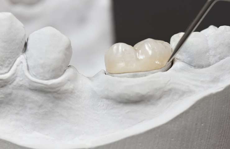 A Dental Crown Might Be Required to Effectively Treat a Tooth with a Large Cavity