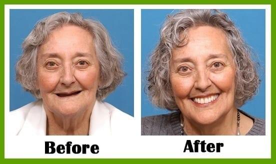 smile makeover professional in Dallas Texas