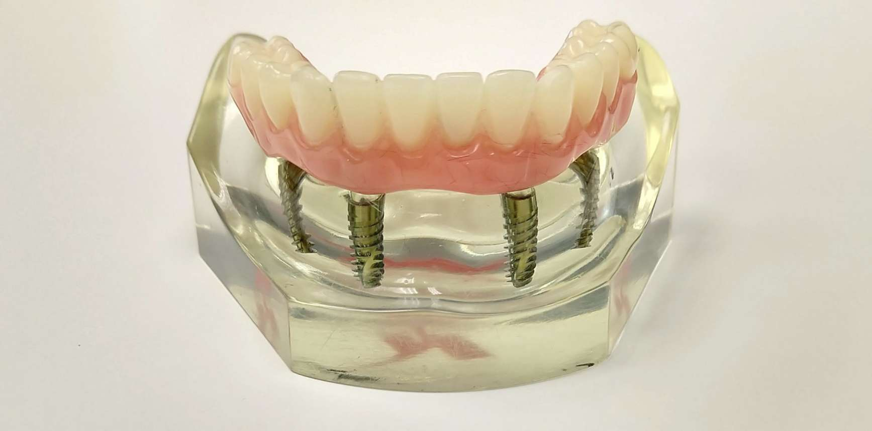 cheapest way to do an all four dental implant